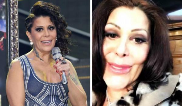 ¡Antes y Después de las Cirugías!